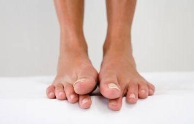 tendinite gros orteil symptomes