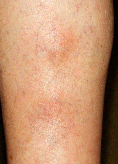 Lopération du remplacement des veines sur les pieds