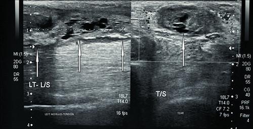 tendinopathie achileene