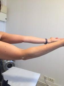 tendinite biceps coude