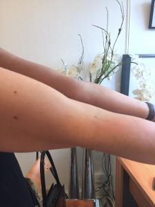 Tendinite du biceps brachial après le 1er traitement