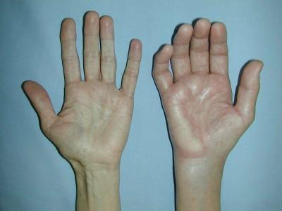 algoneurodystrophie capsulite retractile epaule main