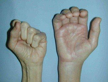 main gauche normale main droite algoneurodystrophie avec retraction