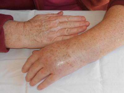 algoneurodystrophie de la main - tendinite epaule main