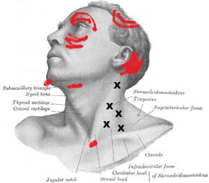 douleur epaule visage
