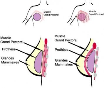 A gauche implant devant le muscle pectoral, à droite implant mammaire sous le muscle grand pectoral