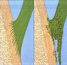 enthèse normale à gauche, enthésopathie inflammatoire sur le schéma de droite