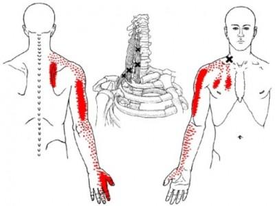 Sur ce schéma on peut voir qu'un problème au niveau des scalènes peut provoquer une douleur dans l'omoplate, l'épaule, le coude et jusque dans le pouce et majeur.